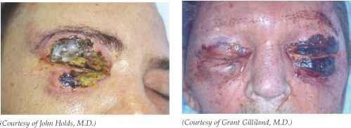 Severe Necrotizing Cellulitis Picture