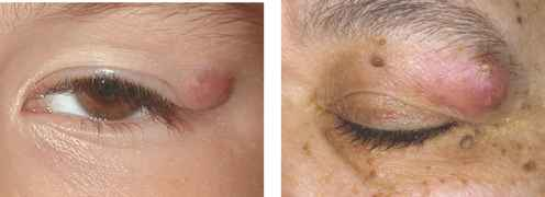 Dermoid Cyst Pictures Eye Brow