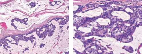 Epidermal Inclusion Cyst Histopathology
