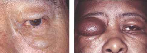 Angioedema Pictures Eyelids