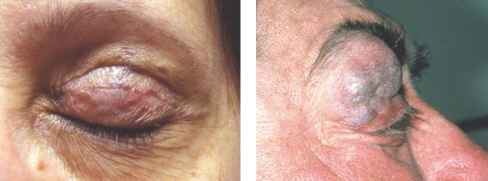 Arteriovenous Malformation Eyelids
