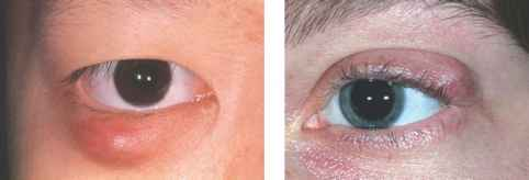 Chalazion Multiple