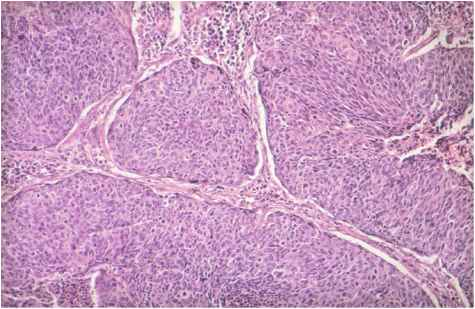Invasive Squamous Cell Carcinoma