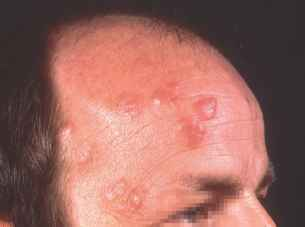 Early Mycosis Fungoides