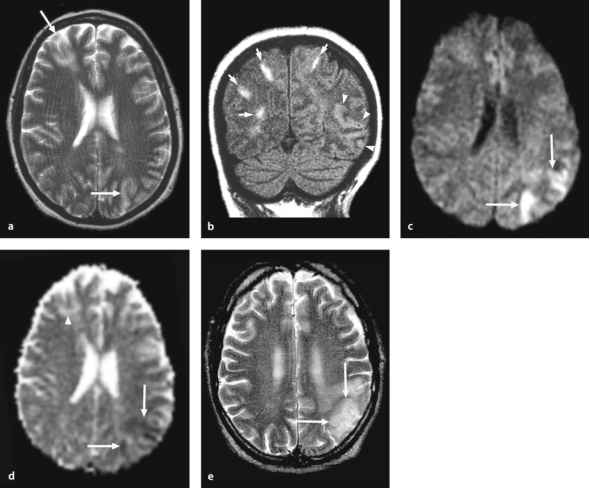 White Matter Lesions Year Old