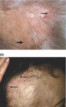 Telogen Effluvium Dermatopathology Derick Mussen