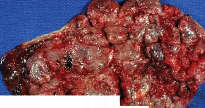 Marginal Sinus Placenta