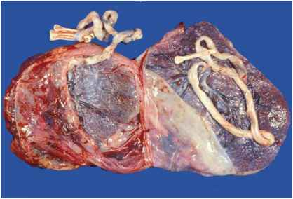 Dizygotic Twins With Fused Placenta