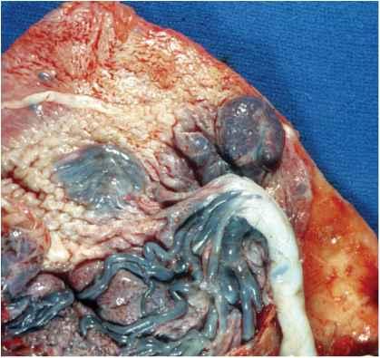 Gestational Sac Embryo...