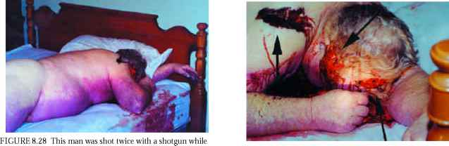 Gunshot Wounds The Shoulder