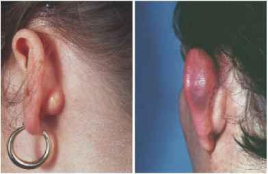 The Pinna - Hearing Loss - Derick Mussen Healthcare