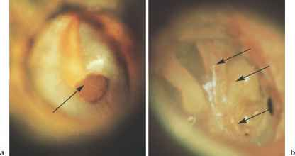 The Tympanic Membrane and Middle - Hearing Loss