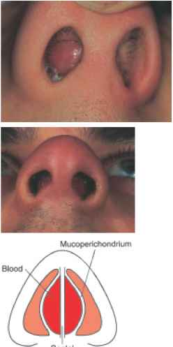 Nasal Septal Hematoma Complications