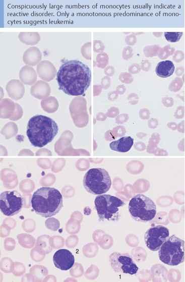 Symptoms leukemia adults