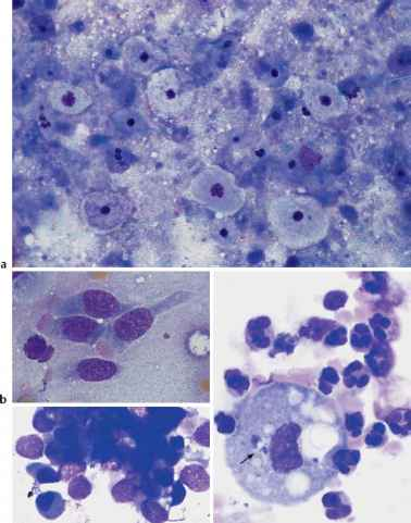 Bronchial Lavage Cells Pictures