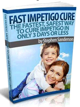 Fast Impetigo Cure In 3 Days Or Less