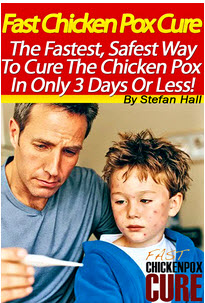 How To Cure Chickenpox In 3 Days