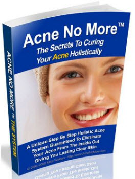 Home Acne Cure