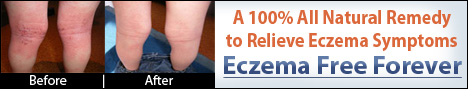 Eczema Free Forever
