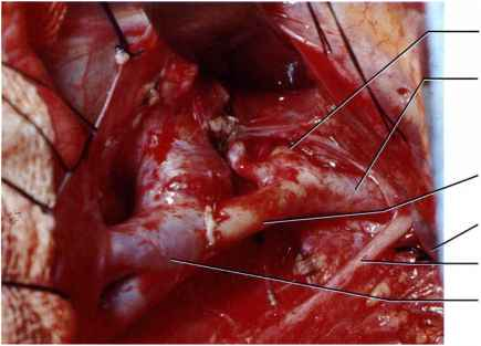 Left Subclavian Artery Repair