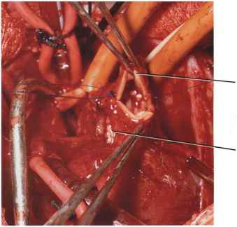 Branch Pulmonary Artery Stenosis