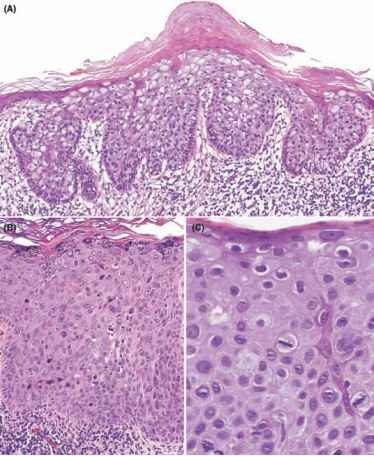Squamous Cell Carcinoma Clear Cell Type