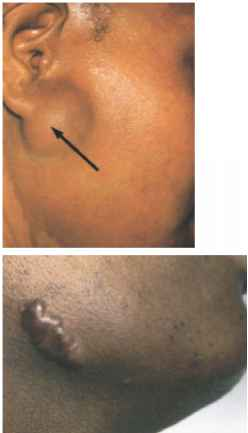 Parotid Glands Swollen