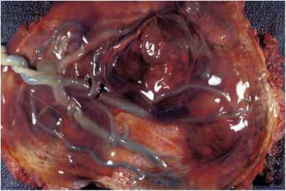 Subchorionic Hemorrhage Blood Clots