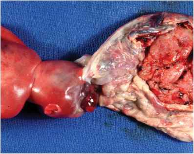 Chorion Amnion Amniotic Sac