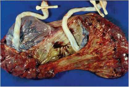 Placental Thickness