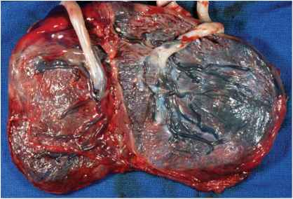 Fused Placenta Twins