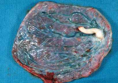 Battledore Placenta