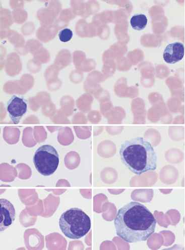 Ebv Related Lymphocytosis
