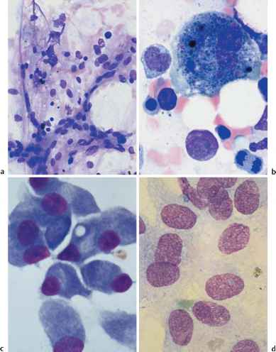 Bone Marrow Osteoblasts Blood Film