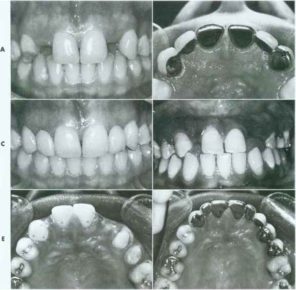 Replace Lateral Incisor With Canine