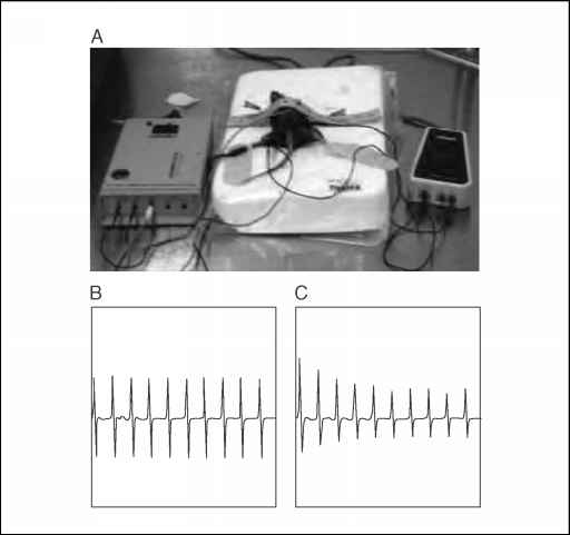Electromyography Mouse