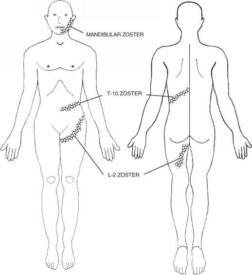Blank Figure Outline Drawing Dermatology