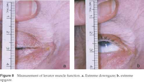 Levator Muscle Test With Rule