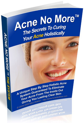 Acne No More Ebook By Mike Walden My True Experience 2021