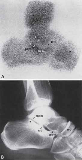Talonavicular Joint Space