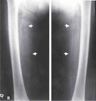 Femoral Artery Calcification