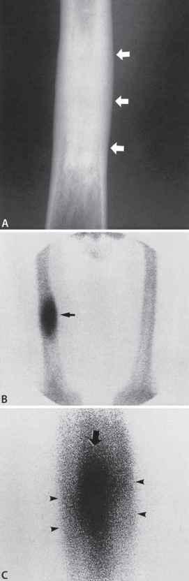 Neonatal And Infantile Osteomyelitis
