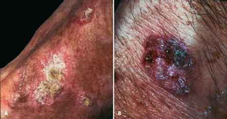 Cutaneous Lupus Hyperpigmented