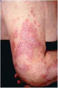 Subacute Cutaneous Lupus