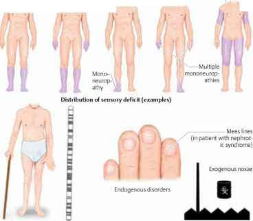 Are allodynia and multiple sclerosis related multiple Hereditary motor neuropathy