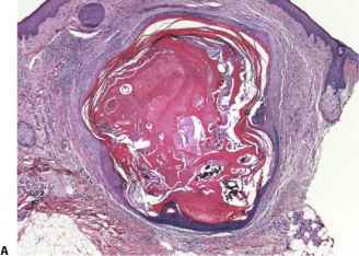 Gardner Syndrome - Photomicrograph Depicting