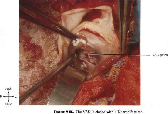Pulmonary Artery Replacement