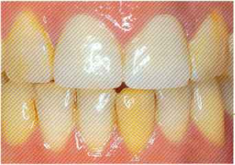 Discoloration Non Vital Teeth