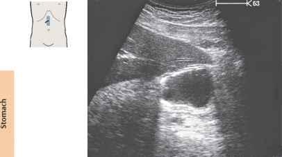 Full anatomy ultrasound