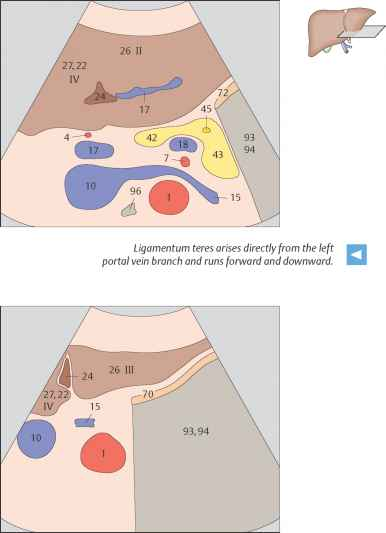 Boundaries Between Subsegments Iva And Ivb In The Human Liver ...